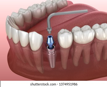 Implant abutment fixation procedure. Medically accurate 3D illustration of human teeth and dentures concept