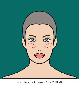 Implants in cheeks, lipofilling. Beautiful female face. Raster illustration.
