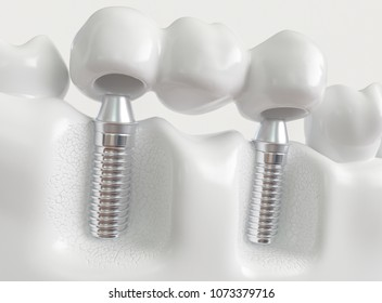 Implants with dental bridge - 3d rendering