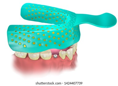 Impression Tray with Impression material putting on lower jaw with healing cap on the place of missing tooth. Close tray procedure. 3D illustration.