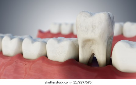 Infected tooth in mouth. 3D rendered illustration.