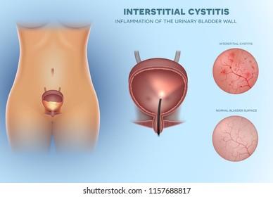 Inflammation of the urinary bladder Cystitis, interior lining closeup illustration