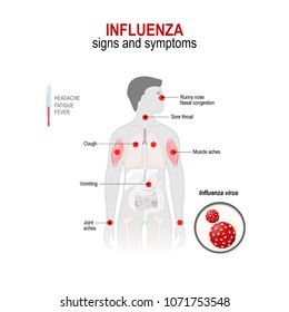 Influenza. Signs and common  symptoms.  Human silhouette with highlighted (red color) internal organs.  diagram for medical use