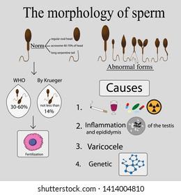 Infographics sperm morphology. Sperm morphology norms. Causes of poor morphology