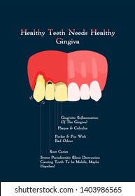 informative dental posters for patients to educate them about the importance of oral and dental care