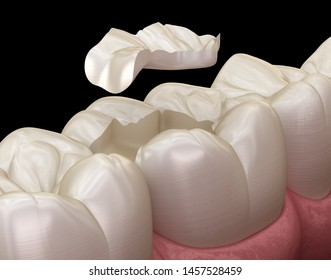 Inlay ceramic crown fixation over tooth. Medically accurate 3D illustration of human teeth treatment