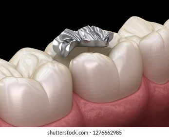 Inlay silver crown fixation over tooth. Medically accurate 3D illustration of human teeth treatment