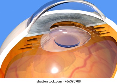 Intraocular lens implanted in the human eye, cataract extraction surgery, 3D rendering, 4K video available, clip id 1006594357.