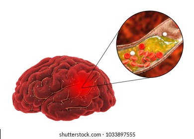 Ischemic brain stroke concept, 3D illustration showing human brain and close-up view of blood vessel obturated with cholesterol plaque
