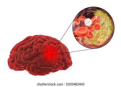 Ischemic brain stroke treatment and prevention concept, 3D illustration showing human brain and close-up view of destruction of cholesterol plaque inside brain artery