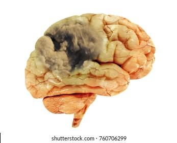 Ischemic stroke, hemorrhagic stroke, cerebral infarction.A sick brain on a white background. Dementia. Alzheimer's disease.