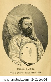 Jesse James, after his death at the hands of turn-coat reward collector Bob Ford on April 3, 1882.