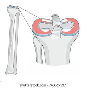 Knee injury and tears in the meniscus can occur when twisting the leg,