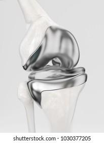 Knee with modern knee prosthesis -- 3D Rendering