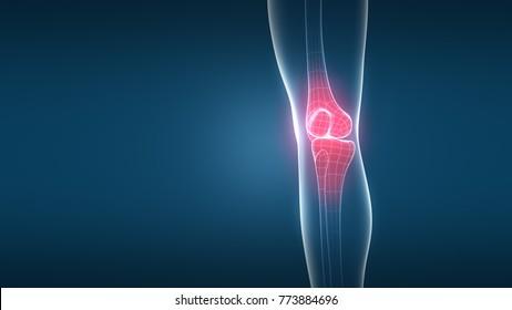Knee Osteoarthritis x-ray on hi-tech Background