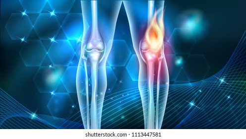 Knee pain abstract joint burning design on a beautiful dark blue abstract background