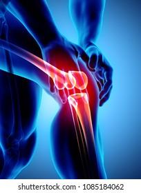 Knie schmerzhaft - Skeleton Röntgen, 3D Illustration medizinischen Konzept.