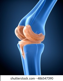 Knee and titanium hinge joint. X-ray view.  3D illustration