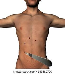 Laparoscopy surgery abdomen cut holes scalpel human body. Minimally invasive surgery, micro cuts with a scalpel