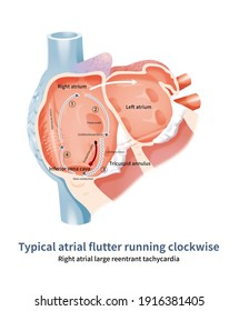 The large reentry in the right atrium runs clockwise along the atrial septum, which is a type of typical atrial flutter. The flutter wave of inferior wall lead was positive.