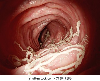 Large roundworm in human intestine. Ascaris lumbricoides lives in the intestines.The larvae penetrate the intestine wall, enter the blood stream and infestate several organs. 3d rendering