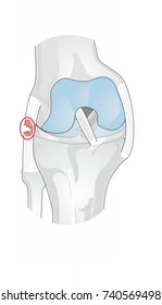 Lateral collateral ligament (LCL) injury of the knee. The LCL runs along the outside of the knee joint, and connects bottom of the femur to the top of the fibula.