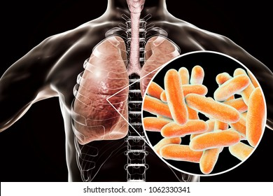 Legionella pneumophila bacteria in human lungs, 3D illustration, the causative agent of Legionnaire's disease