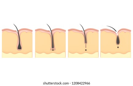 The life of a hair.The cycle of hair  3D Illustration