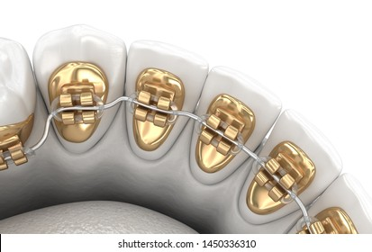 Lingual braces system. 3D illustration concept of golden braces