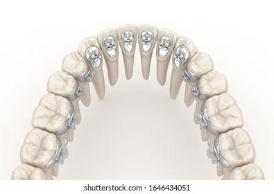 Lingual braces system. 3D illustration concept of silver braces
