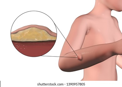 Lipoma, a growth of fat tissue under human skin, 3D illustration showing lipoma on the female arm and its cross-section