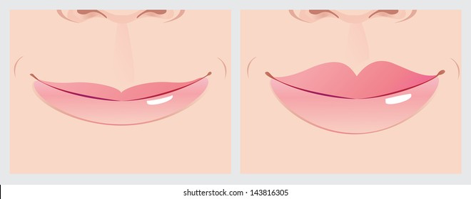 Lips correction creating beautiful smile line.