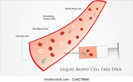 Liquid Biopsy procedure to withdraw cell free DNA in cancer patients for genetic analysis