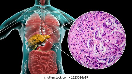 Liver with cirrhosis inside human body. 3D illustration and light micrograph of small nodular cirrhosis