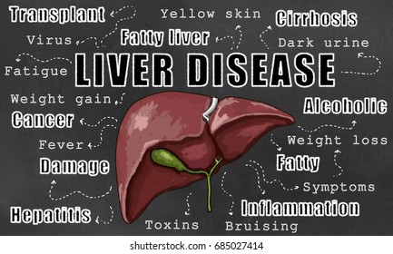 Liver Disease Illustration with Words of Liver Conditions on Blackboard