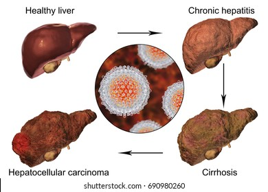 Liver disease progression in Hepatitis C virus infection, 3D illustration