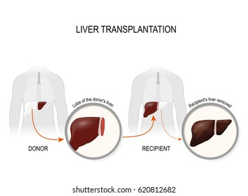 Liver transplantation or hepatic transplantation. replacement of a diseased liver (recipient) on a healthy liver from donor.
