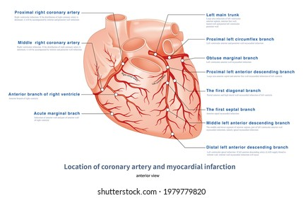 The location of coronary artery supplying myocardium determines the location of myocardial infarction after coronary artery occlusion.