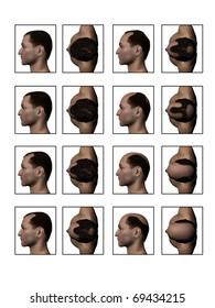 Losing Hair, Hair Loss, Balding, Receding Hairline