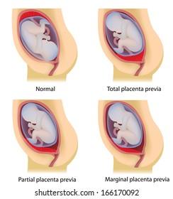 Low lying placenta, placenta previa