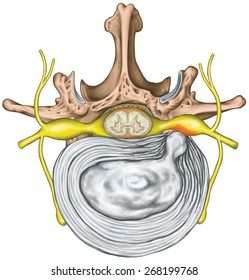 Lumbar disk herniation, herniated disc, lumbar vertebra, lumbar spine, intervertebral disk, nervous system, nerve root, spinal cord,vertebra, anatomy of human skeletal and nervous system,superior view