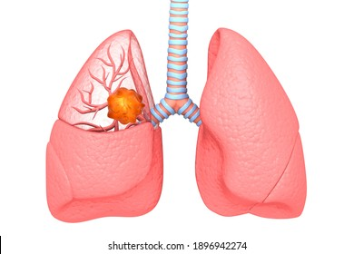 Lung cancer. lung disease. 3d illustration