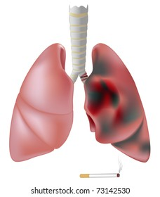 Lung half healthy half diseased with cancer