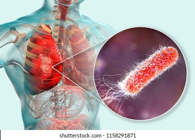 Lung infection caused by bacteria Pseudomonas aeruginosa, 3D illustration. Nosocomial pneumonia. Pneumonia in immunocompromised patients, in persons with cystic fibrosis, mucoviscidosis