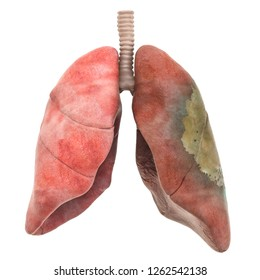 Lungs disease, infection concept, 3D rendering isolated on white background