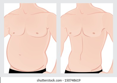 Male abdomen before and after treatment.