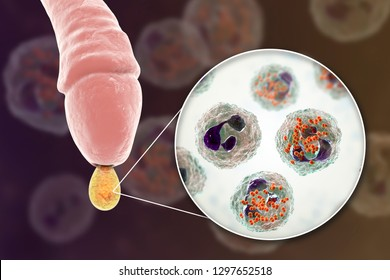 Male gonorrhea, medical concept. 3D illustration showing close-up view of Neisseria gonorrhoeae bacteria inside neutrophils with incomplete phagocytosis found in smear from man urethra