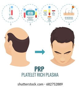 Male hair loss treatment with platelet rich plasma injection. Stages of PRP procedure. Alopecia infographic medical template for transplantation clinics and diagnostic centers.