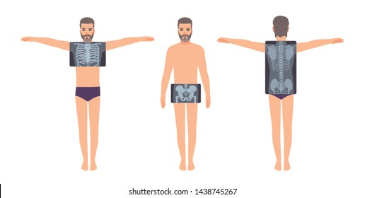 Male patient and his chest, pelvis and back radiograph isolated on white background. Bearded man and X-ray pictures of his skeletal system on monitor. Flat cartoon colorful illustration.