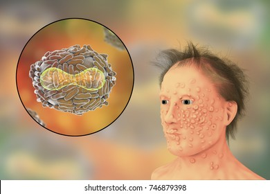 A man with smallpox infection and variola virus, a virus from Orthopoxviridae family that causes smallpox, highly contagious disease eradicated by vaccination, 3D illustration